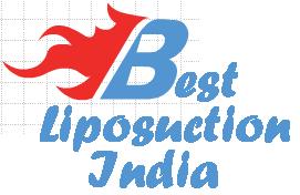 أفضل شفط الدهون الهند, Best Liposuction India-UAEplusplus.com