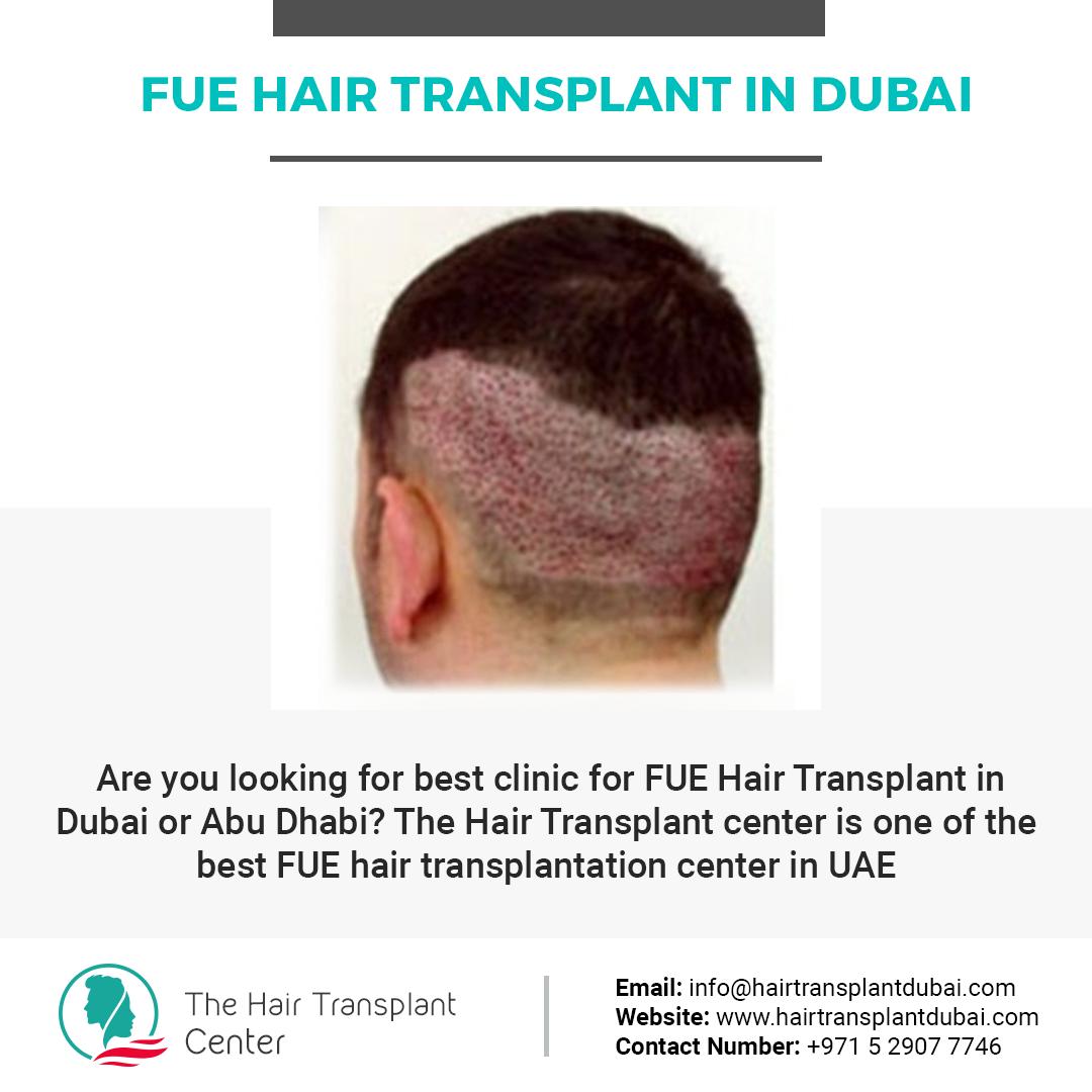 زرع الشعر في دبي, Fue Hair Transplant In Dubai-UAEplusplus.com